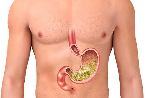 Which Food Is Safe For Gastroesophageal Reflux Disease?