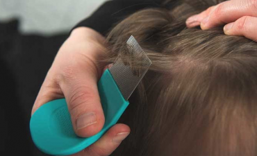 A Review of Lice Treatment Systems That Use Insecticide-Based Solutions to Eliminate Lice