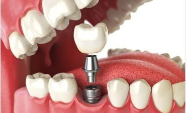 What to Know About Dental Implants?